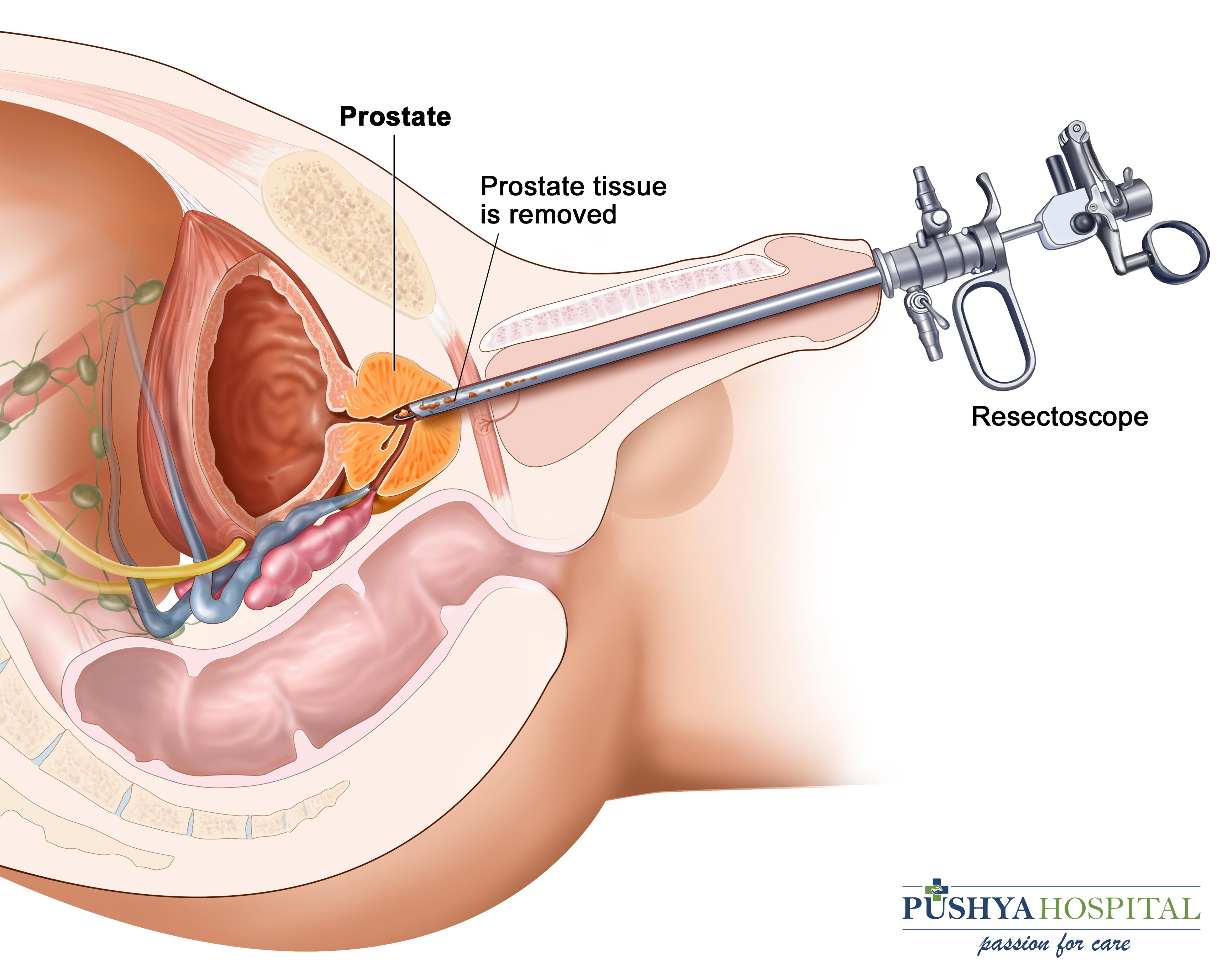 enlarged prostate surgery