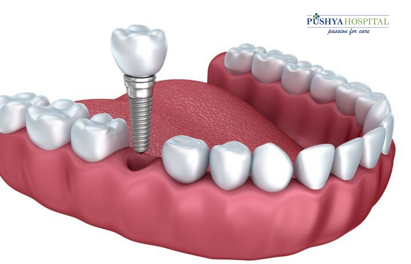 Dental Implants in Ahmedabad | Single Sitting Root Canal